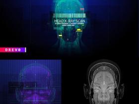 8组头部大脑X光扫描医疗HUD元素4K视频素材